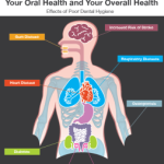 What's Living In Your Mouth…and What's It Doing To Your Heart?